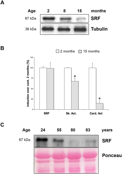 Age-dependant down-regulation of SRF expression in skeletal muscle of mice and human. (A) Immunoblot analysis of protein extracts from 2, 10 and 15 month-old control muscles using anti-SRF antibody. Anti-α-Tubulin is used as a loading control. (B) Quantitative real-time PCR was performed on RNAs prepared from Gastrocnemius muscles of control mice 2 (white) and 15 (grey) months old. Mean expression levels for SRF , Skeletal and Cardiac α-actin mRNAs was normalized using Cyclophilin transcript as reference. (n = 4). *P