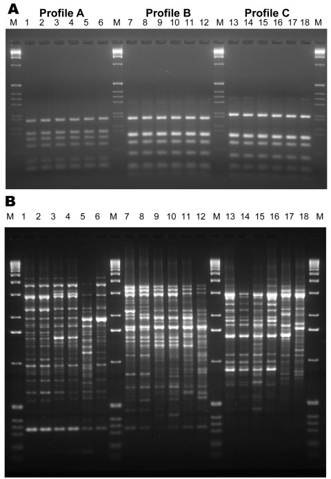 Internal transcribed spacer–restriction fragment length polymorphism (ITS-RFLP) patterns obtained by double digestion with the enzymes Sau 96I and Hha I (A) and of the PCR fingerprinting profiles obtained with the microsatellite specific primer M13 (B) for Scedosporium prolificans : lane 1, WM 06.457; lane 2, WM 06.458; lane 3, WM 06.503; lane 4, WM 06.502; lane 5, WM 06.399; lane 6, WM 06.434. S. aurantiacum : lane 7, WM 06.495; lane 8, WM 06.496; lane 9, WM 06.386; lane 10, WM 06.385; lane 11, WM 06.482; lane 12, WM 06.390. S. apiospermum : lane 13, WM 06.475; lane 14, WM 06.474; lane 15, WM 06.472; lane 16, WM 06.471; lane 17, WM 06.424; lane 18, WM 06.443; lane M, 1-kb marker (GIBCO-BRL, Gaithersburg, MD, USA).