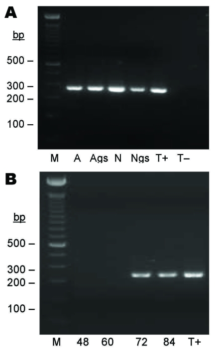 Seminested PCR detection of Bartonella spp. DNA after partial refeeding of infected ticks. A) Bartonella spp. DNA detection in Ixodes ricinus ticks fed on B. henselae –infected blood at previous development stages and refed for 84 h on uninfected blood. Lane M, 100-bp DNA molecular mass; lane A, carcass of female adult; lane Ags, salivary glands of female adult, lane N, carcass of nymph; lane Ngs, salivary glands of nymph; lane T+, B. bacilliformis DNA; lane T–, nymph fed on uninfected ovine blood. B) Bartonella spp. DNA detection in blood isolated from feeders. Lane M, 100-bp DNA molecular mass marker; lane 48, ovine blood after 48 h of tick attachment on skin; lane 60, ovine blood after 60 h of tick attachment on skin; lane 72, ovine blood after 72 h of tick attachment on skin; lane 84, ovine blood after 84 h of tick attachment on skin; lane T+, B. bacilliformis DNA.
