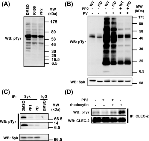 Constitutive tyrosine phosphorylation of FcR γ-chain and Syk in human platelets. A , human washed platelets were incubated at 37 °C with the Syk kinase inhibitor, R406 (1 μ m ), and Src inhibitor PP2 (20 μ m ) for 1 min. Whole cell lysates were probed for phosphotyrosine ( pTyr ). B , wild-type ( WT ) or FcR γ-chain deficient mouse ( KO ) platelets (pretreated with EGTA to block aggregation) were stimulated with 100 μ m pervanadate ( PV ) for 90 s in the presence or absence of Src inhibitor PP2 (20 μ m ). C , human washed platelets were incubated at 37 °C with the Src kinase inhibitors PP1 (10 μ m ) or PD0173952 (10 μ m ) for 5 min. Cell lysates were immunoprecipitated with anti-Syk Ab or an IgG and probed for Tyr(P). Subsequently, they were stripped and reprobed for Syk. D , human washed platelets were stimulated with 30 n m rhodocytin for 5 min in the presence and absence of the Src kinase inhibitor, PP2 (10 μ m ). Cell lysates were immunoprecipitated ( IP ) with anti-CLEC-2 Ab and probed for Tyr(P). Subsequently, they were stripped and reprobed for CLEC-2. The results are representative of between 3 and 8 experiments. WB , Western blot.