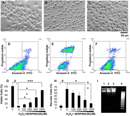 Protective effects of SERPINA3K on rMC-1 cells against H 2 O 2 -induced necrosis. Müller-derived rMC-1 cells were pre-treated with SERPINA3K or BSA for 1 h and then exposed to 400 µM H 2 O 2 for 8 h (A–C, G) and 4 h (D–F, H, I). The protein concentration in the media was brought to 1 µM in each well by addition of BSA. (A–C) Representative phase contrast images showing cell morphology in untreated control (A), cells treated with 1 µM BSA and H 2 O 2 (B), and cells treated with 1 µM SERPINA3K and H 2 O 2 (C). Scale bar, 50 µm. (G) Viable cells were quantified using the MTT assay (mean±SEM, n = 3). (D–F, H) The viable and necrotic cells were analyzed by flow cytometry following staining with PI and Annexin-V; (D) Untreated control; (E) treated with 1 µM BSA and H 2 O 2 ; (F) treated with 1 µM SERPINA3K and H 2 O 2 ; (H) quantification of necrotic cells as percentages of total cells (mean±SEM, n = 3). (I) DNA laddering analysis showed no apparent DNA fragmentation in the H 2 O 2 -treated cells. Lane 1, control cells; 2, cells treated with H 2 O 2 for 4 h; 3, cells treated with H 2 O 2 and SERPINA3K, and 4, over-grown cells as positive control. # P
