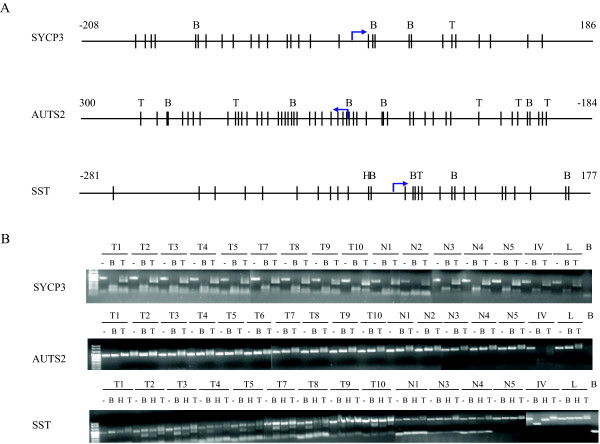 Representative COBRA on 3 gene promoters ( SST , AUTS2 and SYCP3 ) . A: schematic representation of of the restriction enzyme sites in the virtual hypermethylated BSP nucleotide sequence after bisulfite treatment.(B: BstUI , T: TaqI and H: HinfI ). Bars represent CG site and arrow is TSS (retrieved from Ensembl). B: Result of COBRA analysis of BSP products of tumour samples (T1-T10) and 5 normal cervices (N1-N5), in vitro methylated DNA as a positive control (IV) and leukocyte DNA as a negative (unmethylated) control (L); lane B is water blank.