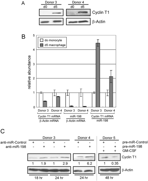 miR-198 functions to repress Cyclin T1 protein expression in primary monocytes. (A) Expression levels of Cyclin T1 and β-actin proteins in freshly isolated monocytes (d0) or macrophages allowed to differentiate for five days (d5) were examined in immunoblots for two donors. (B) Expression levels of Cyclin T1 mRNA relative to β-actin mRNA were measured by RT-real-time PCR assay; expression levels of miR-198 were measured using TaqMan MicroRNA assays. The relative abundance was calculated by normalizing of β-actin mRNA or miR-198 levels. Bars represent range in three measurements. (C) miR-198 inhibitor (anti-miR-198) or control inhibitor (anti-miR-Control) were transfected into freshly isolated monocytes from two donors (Donor 3, 4). miR-198 precursor (pre-miR-198) or control precursor (pre-miR-Control) were transfected into freshly isolated monocytes and differentiation was induced with GM-CSF treatment (Donor 5). Cells were harvested by direct lysis at times indicated after transfection and Cyclin T1 protein expression was examined in immunoblots. Quantification of Cyclin T1 protein levels is shown below each band (normalized to β-actin).