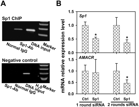 Transcription factors <t>Sp1</t> is involved in AMACR gene regulation in HCT 116 cells. Putative Sp1 binding site at CG3 and 10 were identified. A: ChIP assay with Sp1 antibody targeting AMACR CGI ( Figure 2B ). A PCR signal was detected in the Sp1 antibody ChIP with genomic DNA and normal <t>IgG-immunoprecipitated</t> DNA as the PCR input and negative control, respectively ( Figure 5A, top panel ). As a ChIP negative control, amplification of a region in the last exon of AMACR gene distant to the putative Sp1 sites was included in the experiment. Only the DNA input showed the amplification ( Figure 5A, lower panel ). B: siRNA-mediated Sp1 knockdown decreased the AMACR transcript level. Real-time RT-PCR demonstrated that the first-round siSp1 decreased the Sp1 transcript level 48% ( p