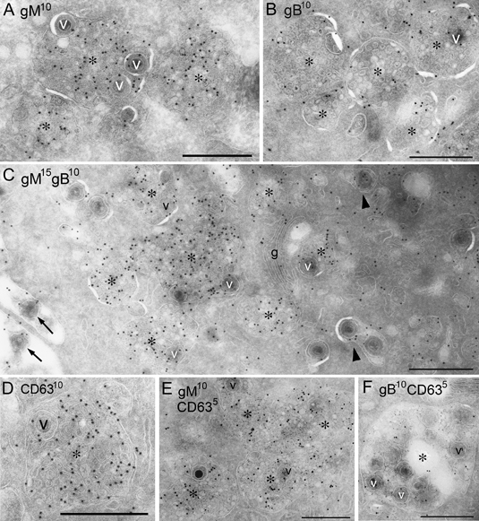 Accumulation of gB, gM and CD63 in MVBs Immunogold labeling on ultrathin cryosections of HHV6A-infected cells showing gM (A) (10 nm), gB (B) or CD63 (D) (10 nm) or double labeling indicating gM (15 nm) and gB (10 nm) (C) or CD63 (5 nm) and gM (10 nm) (E) or gB (10 nm) (F). A–C) Immunogold particles indicating gM and/or gB were localized to both the internal vesicles of MVBs (asterisks) and the virions (v) within them. Note that extracellular virions (arrows), smaller vacuoles that contained only virions (arrowheads) and the Golgi apparatus (g) were also immunopositive for gM and gB. D) CD63 was localized to the internal vesicles of the MVBs (asterisk) and the virions (v) within them. E and F) Immunogold particles indicating gM (E) or gB (F) with CD63 were colocalized to the internal vesicles of the MVBs (asterisks) and the virions (v) within them. Scale bars: 0.5 μm.