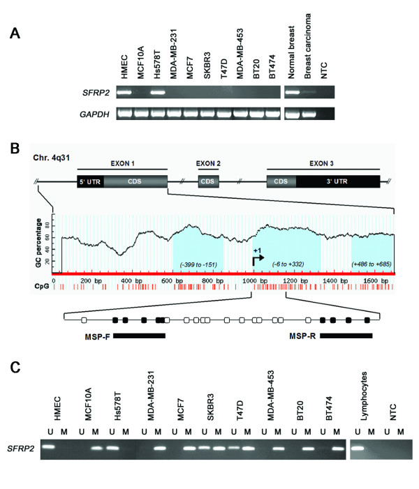 SFRP2 expression and promoter methylation in breast cancer cell lines . (A) SFRP2 mRNA expression in benign and malignant cell lines was determined by RT-PCR. All but one malignant cell line (Hs578T) completely lacked SFRP2 mRNA expression. Of the two benign breast cell lines (MCF10A and HMEC) only HMEC cells were found to express abundant SFRP2 mRNA. In a commercially available human normal breast tissue cDNA SFRP2 expression was clearly detectable, while expression was strongly reduced in a corresponding cDNA of human malignant breast tissue. (B) Genomic structure of the human SFRP2 gene on chromosome 4q31. Bioinformatic analysis revealed three CGIs (light blue), located within the SFRP2 promoter (left CGI), the 5' untranslated region (UTR; central CGI) and the coding sequence (CDS; right CGI). Methylation of the central CGI was explored by MSP. Circles indicate CpG sites; filled circles represent MSP forward (MSP-F) and reverse (MSP-R) primer hybridization sites. Indicated positions are related to the transcription start site (+1) initiating the 5'-UTR. (C) MSP was performed with bisulfite-treated DNA from the same breast cell lines as in A. DNA bands in lanes labeled with U indicate PCR products amplified with primers recognizing unmethylated SFRP2 promoter sequence. DNA bands in lanes labeled with M represent amplification products with methylation-specific primers. Five out of eight mammary tumor cell lines exhibit complete promoter methylation (MDA-MB-231, MCF7, MDA-MB-453, BT20 and BT474), two cell lines show partial SFRP2 methylation (SKBR3 and T47D). In Hs578T, only unmethylated SFRP2 promoter sequence could be detected, like it was also found in benign HMEC cells. In addition, lymphocyte DNA from a healthy donor did not reveal SFRP2 methylation. GAPDH served as cDNA loading control; NTC represents the no template control.