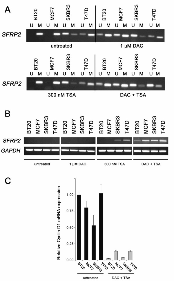 Global demethylation and histone acetylation restores SFRP2 expression . (A) MSP of four malignant cell lines was performed with DNA from either untreated cells, or after treatment with 1 μM DAC, or after treatment with 300 nM TSA, or after a combined treatment applying both drugs. In three cell lines (BT20, MCF7, T47D) a promoter demethylating effect could be visually detected, since signals indicative of unmethylated SFRP2 promoter arise (BT20, MCF7) or become enhanced (T47D) after the combined treatment. In T47D, DAC alone had no detectable demethylating effect on the SFRP2 promoter. (B) Expression of SFRP2 mRNA before treatment, or after treatment with 1 μM DAC, or after treatment with 300 nM TSA, or after a combined treatment applying both drugs. Treatment with DAC alone was not able to induce SFRP2 expression in all cell lines, in contrast to TSA which induced expression in two out of four cell lines (SKBR3 and T47D) previously showing partial SFRP2 methylation. However, only combined promoter demethylation and histone reacetylation leads to strong induction of SFRP2 mRNA expression in all cell lines. GAPDH served as cDNA loading control. (C) Suppression of Cyclin D1 mRNA expression after global DNA demethylation of breast cancer cell lines as determined by realtime PCR. Untreated tumor cells (black bars) and cells treated with DAC/TSA (grey bars) show significantly different expression levels of Cyclin D1 mRNA ( P = 0.029, two-sided Mann-Whitney U-test). Expression level of each sample is normalized to its GAPDH expression and related to untreated BT20 cells (set to 1).