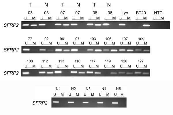 SFRP2 methylation analysis of primary breast cancer specimens . MSP was performed on bisulfite-treated DNA from primary invasive breast cancer tissues. MSP results from 19 representative patient samples are shown. DNA bands in lanes labeled with U indicate PCR products amplified with primers recognizing the unmethylated SFRP2 promoter sequence. DNA bands in lanes labeled with M represent amplified products with methylation-specific primers. In addition, five representative normal cancer-unrelated breast tissues (N1 – N5) are shown. DNA from the breast cancer cell line BT20 and lymphocyte DNA from a healthy donor (Lyc) served as positive controls for MSP. NTC designates the no template control; T indicates tumor tissue; N indicates normal breast tissue.