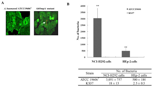 Adherence and invasion of A. baumannii ATCC19606 T and isogenic AbOmpA - mutant in epithelial cells . (A). Adherence of A. baumannii to epithelial cells. NCI-H292 cells were infected with A. baumannii strains at an MOI of 100 for 1 h. Actin was stained with Alexa Fluor ® 488 phalloidin (green). Bacteria were stained with polyclonal anti-rabbit AbOmpA antibody, followed by a secondary antibody Alexa Fluor ® 568 (red). (B). NCI-H292 and HEp-2 cells were infected with A. baumannii at an MOI of 100 for 5 h. Invasion efficiency was expressed as the number of bacteria per well using the gentamicin protection assay. Results represent the mean and standard deviation of three separate experiments on separately days. * P