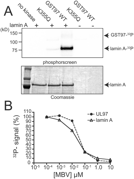 In vitro phosphorylation of lamin A by GST-UL97. (A) Recombinant His-tagged lamin A was incubated in kinase reaction buffer in the presence of γ- 32 P-ATP either alone (no kinase), with catalytically deficient GST-UL97 K355Q (K355Q), or with wild-type GST-UL97 (GST97 WT). GST-UL97 K335Q or wild-type GST-UL97 were also incubated in kinase buffer without lamin A. Following termination of kinase reactions, proteins were resolved by SDS-PAGE. Signal from incorporation of 32 P was detected by exposure to a phosphorscreen (top panel), and total protein was detected by Coomassie brilliant blue staining (bottom panel). The positions of radiolabeled GST-UL97 (GST97) and lamin A, and Coomassie stained lamin A are indicated. (The amounts of GST-UL97 were too small to see on the stained gel.) (B) UL97 autophosphorylation and labeling of lamin A were quantified following in in vitro kinase reactions in the presence of varying concentrations of maribavir (MBV). Signal detected from 32 P incorporation for autophosphorylation of GST-UL97 and phosphorylation of His-tagged lamin A are plotted as a percent of the signal detected in the absence of drug. The results taken together show that UL97 phosphorylates lamin A in vitro.