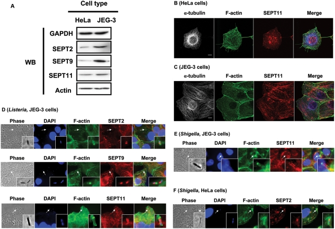 Septin expression, localization, and recruitment at the bacterial entry site in human non-phagocytic cells. (A) Western blots (WB) of septins in non-phagocytic cell lines. HeLa and JEG-3 cells were harvested, and cell lysates were separated by 10% SDS-PAGE before immunoblotting. Blots were probed with antibodies specific to GAPDH, SEPT2, SEPT9, SEPT11, and actin. Blots for GAPDH are shown as a loading control. (B) Septin filaments partially colocalize with actin filaments in HeLa cells. Endogenous α-tubulin, F-actin, and SEPT2, SEPT9, or SEPT11 were visualized by immunostaining with anti-α-tubulin (grey and in Merge blue), anti-F-actin (green), and anti-SEPT2, anti-SEPT9, or anti-SEPT11 antibodies (red). Representative confocal images for α-tubulin, F-actin, and SEPT11 distribution in HeLa cells are here displayed, and similar images were obtained labeling for SEPT2 or SEPT9. Scale bars indicate 10 µm. (C) Septin filaments partially colocalize with microtubules in JEG-3 cells. Endogenous α–tubulin, F-actin, and SEPT2, SEPT9, or SEPT11 were visualized for immunostaining with anti-α-tubulin (grey and in Merge blue), anti-F-actin (green), and anti-SEPT2, anti-SEPT9, or anti-SEPT11 antibodies (red). Representative confocal images for α-tubulin, F-actin, and SEPT11 distribution in JEG-3 cells are here displayed, and similar images were obtained labeling for SEPT2 or SEPT9. Scale bars indicate 10 µm. (D) Septin recruitment at the site of Listeria entry in JEG-3 cells. Cells were infected with L. <t>monocytogenes</t> BUG 1641 for 5, 10, or 15 minutes and then fixed for microscopy. Endogenous septin was stained with anti-SEPT2, anti-SEPT9, or anti-SEPT11 antibodies (red). Actin was stained with anti-F-actin (green), and Listeria was marked using DAPI (blue). Representative photos are here displayed, where inset images highlight the septin collar-like recruitment around Listeria to which the white arrows are pointing. Scale bars indicate 1 µm. (E, F) Septin recruitment to th