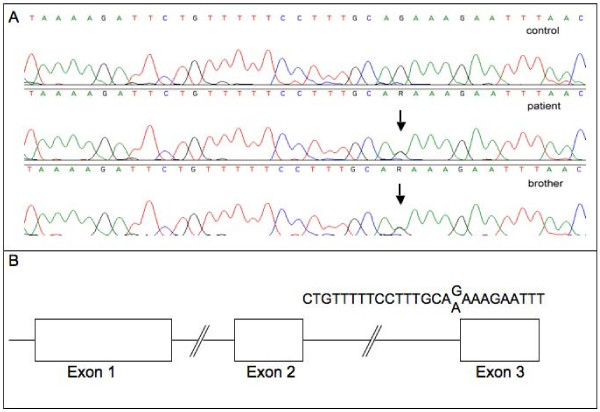 a: A heterozygous sequence variation in the terminal nucleotide of intron 2 of the FGF10 gene (g.85478 corresponding to c.430-1, G > A) was detected which alters the consensus motif for splice acceptor site recognition . The upper panel shows a representative electropherogram of a healthy individual. The middle and the lower panel demonstrate the sequence variation in genomic <t>DNA</t> derived from the patient and his brother. The changed nucleotide is marked by an arrow. 2b: Chart showing the exon/intron structure of the FGF10 gene. The characteristic polypyrimidine stretch and the consensus acceptor site are shown. The changed nucleotide is marked by an arrow.
