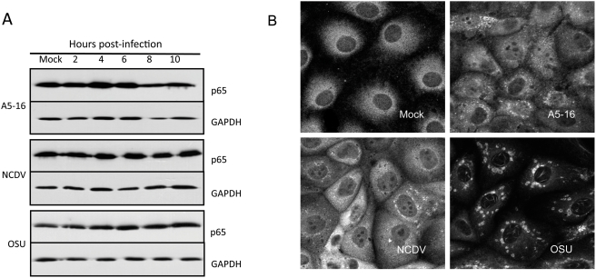 NFκB subunit p65 is stable in rotavirus infected cells. (A) MA104 cells were infected with three pfu/cell of the indicated virus strain. Lysates were prepared at 2, 4, 6, 8, and 10 hpi and the abundance of p65 was determined by immunoblot using anti-p65 antibody. Blots were probed with anti-GAPDH as a loading control. (B) The subcellular localization of p65 in MA104 cells infected with three pfu/cell of the indicated virus strain was determined at six hpi by confocal microscopy (63×, NA 1.40). Cells were stained with anti-p65 antibody, followed by Alexa Fluor 594-conjugated goat anti-rabbit IgG.