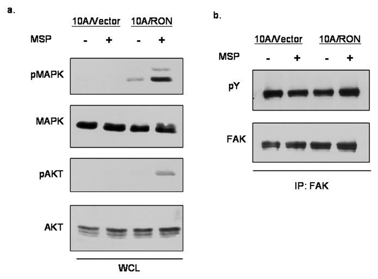 MSP-stimulation of RON leads to MAPK and AKT activation (a)Cell lysates were prepared after 3 hours of serum starvation and 30 minute stimulation with 200ng/ml MSP. Whole cell lysates were run on a polyacrylamide gel and subjected to blotting with phospho-MAPK, MAPK, phospho-AKT and AKT antibodies. (b) Focal adhesion kinase was immunoprecipitated from cells and subjected to a Western Blot analysis by 4G10 phospho-tyrosine antibodies. The blot was stripped and reprobed for total FAK expression.