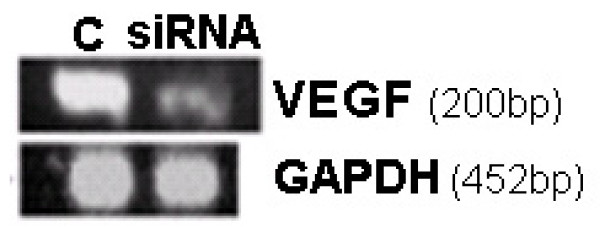 <t>VEGF</t> siRNA-generating pDNA down regulates VEGF <t>mRNA</t> levels in rat cervix . The VEGF gene silencing efficiency of the selected siRNA-generating pDNA was tested in vivo in the cervix of pregnant rat from GD17–20. VEGF siRNA-generating pDNA was found to down-regulate VEGF compared to control. n = 5, ( p
