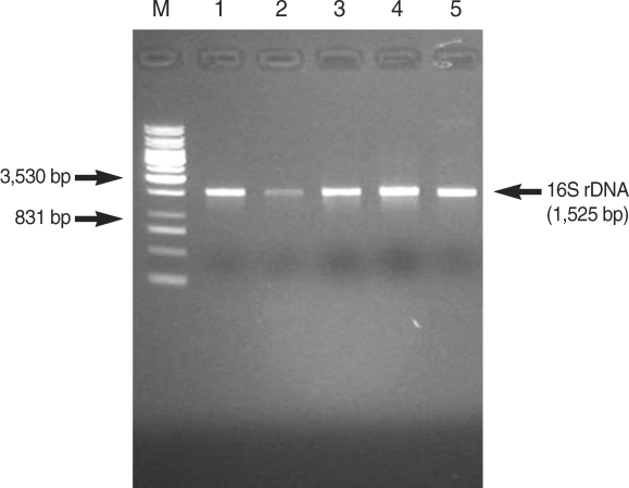 Agarose gel electrophoresis of 16S rDNA produced by PCR primed by <t>27f</t> and 1525r primers from lactic acid bacteria. Lane M, molecular weight marker; lane 1, CAU 6728; lane 2, CAU 7856; lane 3, CAU 9567; lane 4, CAU 9967; lane 5, CAU 9896.
