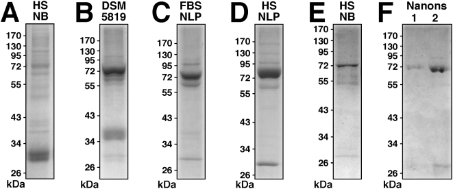 "Protein profiles of NLP and NB cultured from serum. (A) Protein profiles of (A) NB cultured from HS and DMEM, as in Fig. 3 ; (B) NB strain DSM 5819 subcultured in serum-free DMEM for 2 days; (C) FBS NLP prepared as in Fig. 3 in the presence of 5% FBS; (D) HS NLP prepared as in Fig. 3 in the presence of 5% HS. (E) NB as in (A) after three 2-day serial passages through serum-free DMEM. (F) Lane 1: ""Nanons"" after two 2-day passages in serum-free DMEM. Lane 2: ""Nanons"" after two 2-day passages in DMEM containing 10% FBS. Gels were stained with Coomassie blue. The protein samples loaded onto each lane and their preparation are described in the Materials and Methods ."