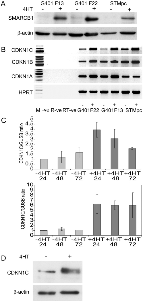 SMARCB1 induces CDKN1C expression in rhabdoid tumor cell lines. (A). Western blot showing induction of SMARCB1 protein in G401 clones F13 and F22, and in a transduced pool of STM91-01 cells, STMpc. Lanes show protein in un-induced (−) cells and in cells induced with 4HT (+). (B) Gene expression examined by RT-PCR for CDKN1C, CDKN1B, CDKN1A and the HPRT control gene in un-induced (−) and in 4HT-induced (+) cells. The -ve lane represents the PCR negative control, the RNA –ve control lane represents the negative control for reverse transcription and the RT-ve control represents a control for genomic contamination derived from the induced F22 sample. CDKN1C was amplified for 40 cycles and CDKN1B and CDKN1A for 28 cycles. All primers were located in separate exons. (C) CDKN1C expression normalized to the GUSB control gene, derived by real-time quantitative pcr in un-induced (−4HT) and in induced (+4HT) cultures of F22 cells (upper panel) and in cultures of STMpc cells (lower panel). The data represent the mean of three independent experiments and the error bars represent the standard error of the mean. (D) Western blot showing expression of endogenous CDKN1C protein pre and post SMARCB1 induction with 4HT. Immunoblotting was performed with the p57 Kip2 antibody from Cell Signaling Technologies with an exposure time of 2 minutes.