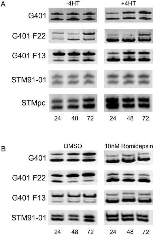 SMARCB1 and HDACi have identical effects on allelic expression of CDKN1C. (A) CDKN1C allelic expression in un-induced and in induced cultures of G401, F22, F13, STM91-01 and in STMpc cells. Changes in the pattern of allelic expression can be seen in F22 and in F13 cells following induction of SMARCB1 expression with 1 uM 4HT. Wild-type G401 cells did not show any change in allelic expression following 4HT treatment. Biallelic CDKN1C expression persisted in STM91-01 cells and in STMpc cells. (B) CDKN1C allelic expression in un-induced cultures of F22 and F13 with 0.01% DMSO and 10 nM Romidepsin and in G401 cells. Changes in allelic expression can be seen with Romidepsin treatment in F13, F22 cells and in wild-type G401 cells. As with SMARCB1 induction in STMpc cells, allelic expression in STM91-01 cells was unchanged following Romidpesin treatment.