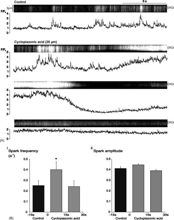 Cyclopiazonic acid initially increased Ca 2+ -spark frequency. (A) Linescan and graph showing control activity in a single myocyte within an arteriole under control conditions, and during the first 45 s of superfusion with 20 μM cyclopiazonic acid. Time-course data in the graph refers to the indicated region of interest (R.O.I.). (B) Summary data from 32 cells for, (i) spark frequency, and (ii) spark amplitude during 3 consecutive, 15 s periods ( * P