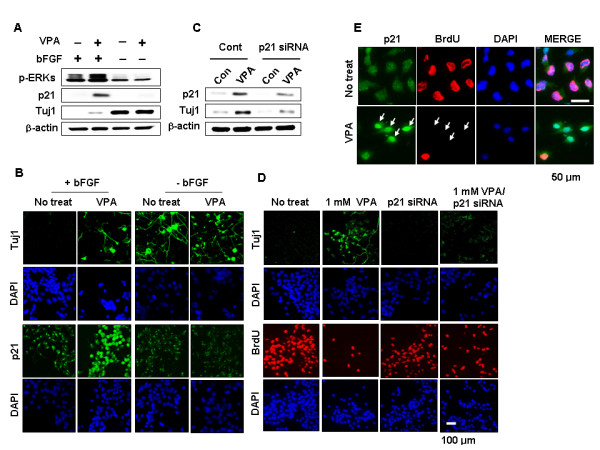 Effects of bFGF and p21 Cip/WAF1 siRNA on regulation of the VPA-induced differentiation and inhibition of proliferation in NPCs (A-B) . NPCs were treated with 1 mM VPA for 48 h in the presence or absence of 10 ng/ml bFGF. (C-D) NPCs were transfected with 100 nM p21 Cip/WAF1 siRNA prior to treatment with 1 mM VPA for 48 h in the presence of 10 ng/ml bFGF. Whole-cell lysates were subjected to immunoblotting to detect p21 Cip/WAF1 , Tuj1, or β-actin. Alternatively, cells were processed for immunofluorescent labeling to detect the presence of Tuj1 (green), p21 Cip/WAF1 (green), or BrdU (red). Nuclei were counterstained with DAPI. Images are 400× magnifications. (E) NPCs were treated with 1 mM VPA for 48 h in the presence of 10 ng/ml bFGF. Cells were processed for immunofluorescent labeling to detect the presence of p21 Cip/WAF1 (green) or BrdU (red). Nuclei were counterstained with DAPI. Magnification is 1200×.