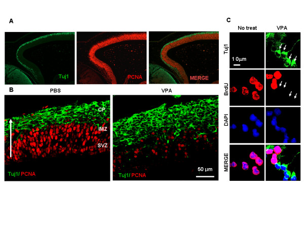 Effects of VPA on differentiation and proliferation in cerebral cortex of the developing embryo . (A) Coronal sections of E15.5 rat embryo cerebral cortex immunofluorescently labelled for Tuj1 (green) and PCNA (red). (B) Rats at E13.5 of gestation were intravenously injected with 200 mg/kg VPA or PBS at 0 and 24 h and sacrificed. Immunofluorescence labeling of Tuj1 (green) and PCNA (red) was performed on coronal sections of embryonic brains of the E15.5 rat. The three layers of the cerebral cortex – the cortical plate (CP), the intermediate zone (IMZ), and the subventricular zone (SVZ) above the lateral ventricle (LV)- can be distinguished. The white arrow indicates the direction of migration of the differentiating cells (bar = 25 μm). (C) NPCs from E14 embryos were incubated in the presence of 10 ng/ml bFGF in the presence or absence of 1 mM VPA for 48 h. Immunofluorescence labeling was performed with anti-Tuj1 and anti-BrdU. Nuclei were counterstained with DAPI.
