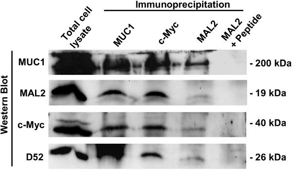 Co-immunoprecipitation analyses verifying interactions between MAL2 and MUC1 . Total cell lysate from MCF-10A/Myc-MAL2 cells was immunoprecipitated with MUC1, c-Myc, or rabbit MAL2 antisera, either alone or with MAL2 peptides, as indicated above the top panel. Total cell lysate and immunoprecipitates were separated by SDS-PAGE and subjected to Western blot analyses with antisera against MUC1, MAL2, c-Myc and D52, as indicated at the left. Sizes of detected proteins are indicated at the right. Results shown are representative of at least 3 independent experiments.