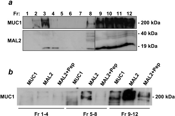 Co-immunoprecipitation analyses to detect MAL2/MUC1 interactions in Triton X-100-soluble versus-insoluble fractions. MCF-10A/Myc-MAL2 cells were extracted with 1% Triton X-100 at 4°C, and subjected to sucrose gradient centrifugation . Antisera employed in Western blot analyses are shown at the left, and sizes of detected proteins are shown at the right. (a) Fractions (Fr, as shown above the top panel) of 1 ml were collected, and aliquots from each were subjected to SDS-PAGE and Western blot analysis with MUC1 and MAL2 antisera. Vertical lines between fractions 8 and 9 distinguish samples loaded on different gels. (b) Pooled fractions (fractions 1–4, which include lipid rafts, fractions 5–8 and fractions 9–12) were immunoprecipitated with MUC1 or MAL2 antisera either alone or with MAL2 peptides (+Pep), as shown at the top of the panel. Immunoprecipitates were separated by SDS-PAGE and subjected to Western blot analysis with MUC1 monoclonal antibody. Results shown represent those obtained from 3 independent experiments.