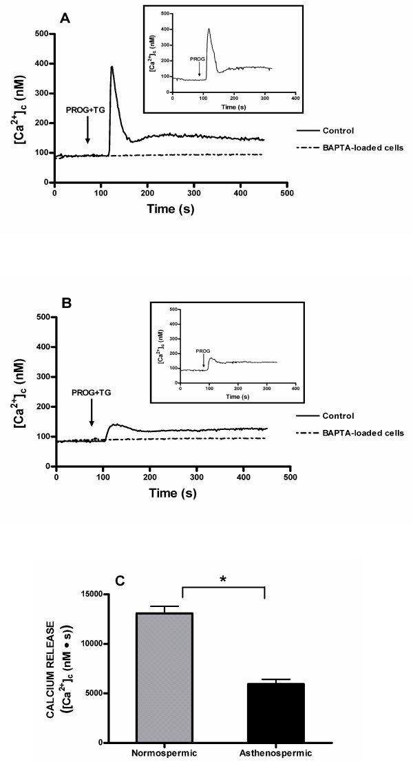 Mobilization of calcium in response to progesterone in human spermatozoa from normospermic or asthenozoospermic patients . Fura-2-loaded human spermatozoa from normospermic (A) or asthenozoospermic (B) patients were stimulated with 20 μM progesterone alone (PROG) (insets) or plus 1 μM thapsigargin (TG) in calcium-free solution (+ 1 mM EGTA), in the absence (control) or presence of dimethyl BAPTA (10 μM for 30 min). Traces are representative of five independent experiments. (C) Histogram represents the integral for 2.5 min of the calcium release, in normospermic and asthenozoospermic patients, calculated as described in Methods section. Values are means ± SD of five independent experiments. * P