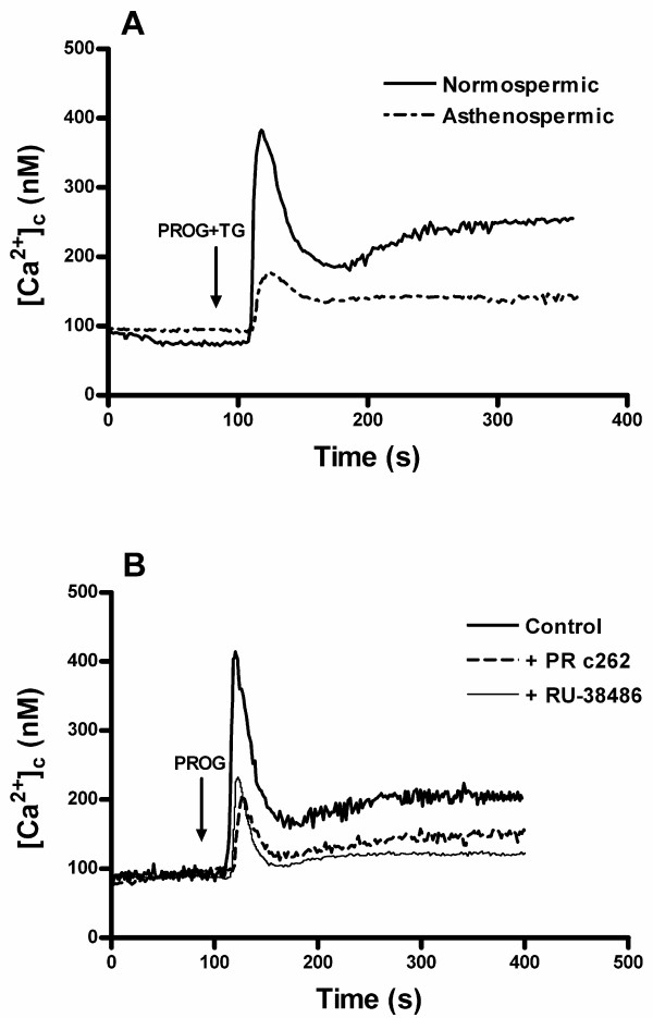 Effect of the blockade of progesterone receptor on calcium mobilization evoked by progesterone in human spermatozoa . (A) Fura-2-loaded human spermatozoa from normospermic and asthenozoospermic patients were stimulated with 20 μM progesterone (PROG) plus 1 μM thapsigargin (TG) in a calcium-normal solution (1.2 mM [Ca 2+ ] 0 ). (B) Fura-2-loaded human spermatozoa from normospermic patients were pretreated with the anti-progesterone receptor c262 antibody (PR c262) (1:10, final concentration 100 μg/ml for 30 min) or the progesterone receptor antagonist RU-38486 (50 μM for 30 min) and then stimulated with 20 μM progesterone (PROG) in a calcium-normal solution (1.2 mM [Ca 2+ ] 0 ). Traces are representative of 3–4 independent experiments.