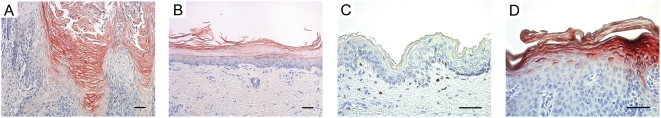 Immunolocalization of hBD-2 in human epithelia. Immunohistochemical staining of normal human tissues (tongue, plantar skin and trunk skin, A–C) with a polyclonal rabbit antiserum against recombinant hBD-2. Note that protein data largely follow the mRNA data demonstrating the absence in normal skin, low expression in tongue and plantar skin. Bar = 100 µm. Control sections stained with pre-immune serum were negative (not shown).
