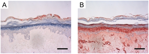Induction of hBD-2 protein expression in reconstructed skin by proinflammatory cytokines. Expression of hBD-2 in 3-D reconstructed skin following stimulation with psoriasis-associated cytokines (10 ng/ml IL-1α, 5 ng/ml TNFα and 5 ng/ml IL-6) for 72 hours. Note that without stimulation there is no hBD-2 expression (A), whereas the cytokine mixture induces high expression levels that are secreted into the underlying culture medium (147 ng/ml in 24 h). Part of the hBD-2 protein remains adsorbed to the dermal matrix as witnessed by the staining of structures in the dermis (B). Bar = 100 µm.