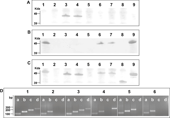 Indentification of S. Typhi flagellar antigens. A. Western blotting of various S. Typhi mid-log phase whole-cell lysates with anti-z66 flagellar antibody. Lane 1, S. Typhi Ty2; Lane 2, S. Typhi Ty2(Δ fliC ); Lane 3, S. Typhi 403ty- fliC (j); Lane 4, S. Typhi 404ty -fliC (d); Lane 5, S. Typhi 404ty Δ fljB z66 ; Lane 6, S. Typhi 404ty Δ fljA z66 ; Lane 7, S. Typhi 404ty Δ fljB z66 , Δ fljA z66 ; Lane 8, S. Typhi 403tya -fliC (j) (post-phase switch); Lane 9, S. Typhi 404tya -fliC (d) (post-phase switch). Protein sizes were estimated on SDS-PAGE gels prior to transfer with seeblue2 protein ladder (Invitrogen). B. Western blotting of various S. Typhi whole-cell lysates with anti-d flagellar antibody. Lanes as A. C. Western blotting of various S. Typhi whole-cell lysates with non-specific Salmonella flagellar antibody. Lanes as A. D. RT-PCR detecting mRNA transcription of aroC (lanes a, primers aroC_RT_F/R, 100 bp), fliC (lanes b, primers fliC_RT_F/R 150, bp), fljB z66 (lanes c, primers fljB_RT_F/R, 200 bp) and fljA z66 (lanes d, primers fljA_RT_F/R, 250 bp). Panel 1, genomic DNA from S. Typhi 404ty -fliC (d); panel 2, cDNA from S. Typhi Ty2; panel 3, cDNA from S. Typhi 404ty -fliC (d); panel 4, cDNA from S. Typhi 404ty -fliC (d)Δ fljB z66 ; panel 5, cDNA from S. Typhi 404ty -fliC (d) Δ fljA z66 and panel 6, cDNA from S. Typhi 404ty -fliC (d) Δ fljB z66 , Δ fljA z66 . Sizes are compared with the migration of Hyperladder IV (Bioline).