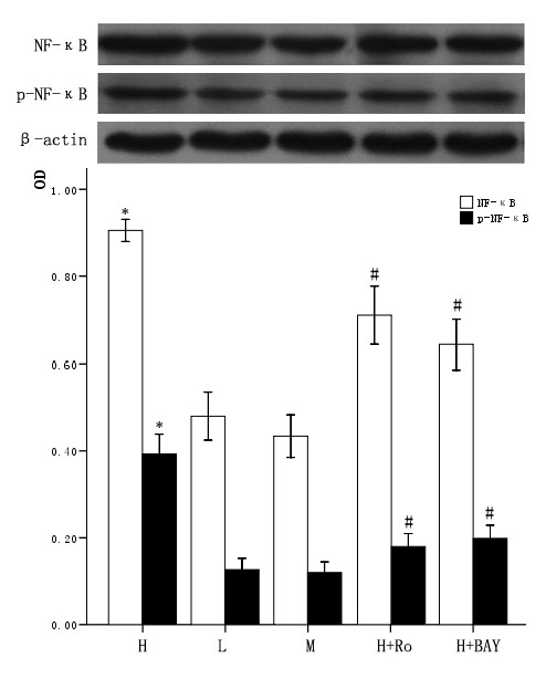 Effect of high glucose and PKC inhibitor Ro-31-8220, NF-κB inhibitor BAY11-7082 on total cellular NF-κB expression in cardiomyocytes . Cardiomyocytes cultured in high glucose levels showed higher expression and increased activity of NF-κB compared with control group. After adding PKC inhibitor Ro-31-8220(50 nmol/L) and NF-κB inhibitor BAY11-7082(5 μmol/L), the expression and activity of NF-κB decreased as shown in figure 3. Treatment with mannital, used as an osmotic control, had no significant effect on the expression of NF-κB in cardiomyocytes. The results were expressed as means ± SE ( n = 4 or 5). * P