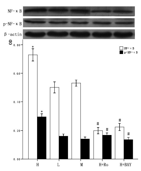 Effect of high glucose and PKC inhibitor Ro-31-8220, NF-κB inhibitor BAY11-7082 on nuclear NF-κB expression in cardiomyocytes . Cardiomyocytes cultured in high glucose levels showed higher nuclear protein expression and activity of NF-κB compared with control group. After adding PKC inhibitor Ro-31-8220(50 nmol/L) and NF-κB inhibitor BAY11-7082(5 μmol/L) the expression and activity of nuclear NF-κB decreased as shown in figure 4. Treatment with mannital, used as an osmotic control, had no significant effect on the nuclear expression of NF-κB in cardiomyocytes. The results were expressed as means ± SE ( n = 4 or 5). * P