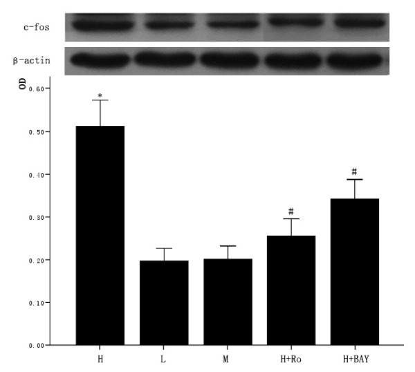 Effect of high glucose and PKC inhibitor Ro-31-8220, NF-κB inhibitor BAY11-7082 on c-fos expression in cardiomyocytes . Cardiomyocytes cultured in high glucose levels showed higher expression of c-fos compared with control group. After adding PKC inhibitor Ro-31-8220(50 nmol/L) and NF-κB inhibitor BAY11-7082(5 μmol/L) to the cardiomyocytes cultured in high glucose levels, the expression of c-fos decreased as shown in figure 6. Treatment with mannital, used as an osmotic control, had no significant effect on the expression of c-fos in cardiomyocytes. The results were expressed as means ± SE ( n = 4 or 5). * P