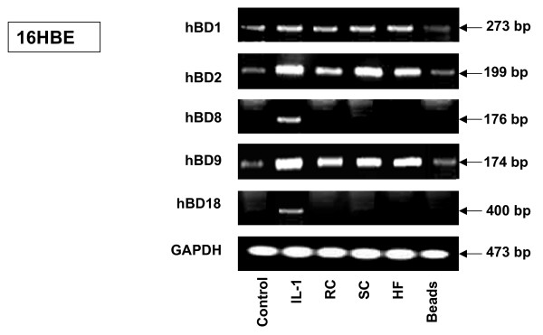 RT-PCR analysis of various defensin expression levels in human 16HBE epithelial bronchial cells exposed to A. fumigatus organisms . 16HBE human epithelial tracheal cells (5 × 10 6 ) were grown in six well plates for 24 hours. After exposing the cells to RC, SC, HF or latex beads for 18 hours, the cells were washed with PBS, mRNA was isolated by TRIzol Reagent and RT-PCR was performed as described above in Materials and Methods. Specific primer pairs (Table 1) were used for RNA amplification: hBD1, 273 bp product; hBD2, 199 bp product; hBD8, 176 bp product; hBD9, 174 bp product; hBD18, 400 bp product and human GAPDH, which was used as an internal control, 473-bp product. All products were amplified according to the conditions described in Table 1. Cells were cultivated in a control well in the absence of A. fumigatus . As a positive control for defensin expression, exposure to human Il-1β was used in all experiments. The hBD1, hBD2 and hBD9 products were sequenced and confirmed to be identical to the predicted sequence. GAPDH was uniformly expressed. One of the four experiments is shown. Abbreviations: resting conidia (RC), swollen conidia (SC), hyphal fragments (HF), glyceraldehyde-3-phosphate dehydrogenase (GAPDH), interleukin-1β (Il–1β).