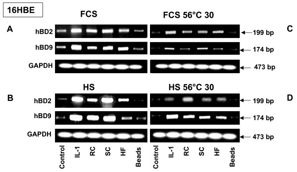 RT-PCR analysis of defensin expression by 16HBE cells exposed to A. fumigatus organisms in the presence of different serums . 16HBE human epithelial bronchial cells (5 × 10 6 ) were grown in six well plates for 24 hours. The cells were then exposed to the different morphotypes of A. fumigatus or the latex beads in the presence of either Human (HS) or Fetal Calf Serum (FCS), (heated or not at 56°C). After 18 hours of incubation, the cells were washed with PBS, mRNA was isolated by TRIzol Reagent, and RT-PCR was performed as described above in Materials and Methods. Specific primer pairs (Table 1) were used for RNA amplification. The sizes of amplified products are indicated and were as predicted. All products were amplified according to the conditions described in Table 1. Cells were cultivated in a control well in the absence of A. fumigatus . GAPDH was uniformly expressed. One of the four results is shown.