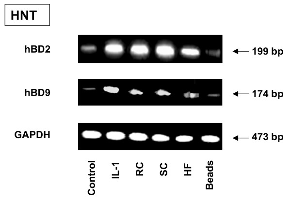 RT-PCR analysis of defensin mRNA expression by primary epithelial cells . Primary epithelial cells were obtained from human nasal turbinates (HNT), as described in Methods. The cells (5 × 10 6 ) were grown in the six well plates for 48 hours. The cells were then exposed to either the latex beads or A. fumigatus organisms for 18 hours. The mRNA was then isolated by TRIzol Reagent and RT-PCR was performed as described above in Materials and Methods. Specific primer pairs (Table 1) were used for RNA amplification. The sizes of amplified products are indicated and were as predicted. The hBD2 and hBD9 products were sequenced and confirmed to be identical to the predicted sequence. GAPDH was uniformly expressed. Cells in a control well were cultivated in the absence of A. fumigatus . One of the three results is shown.