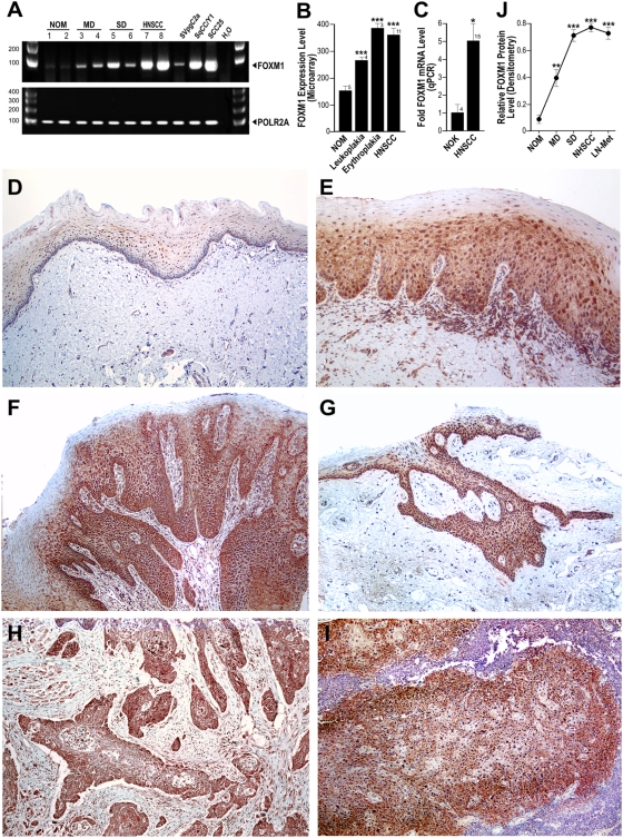 Upregulation of FOXM1 in both human oral premalignant and HNSCC tissues. (A) Semi-quantitative RT-PCR showing the relative expression levels of total FOXM1 mRNA in normal oral mucosa (NOM; #1–2), moderate dysplasia (MD; #3–4), severe dysplasia (SD; #5–6), primary HNSCC (#7–8), premalignant oral keratinocytes SVpgC2a, HNSCC cell lines SqCC/Y1 and SCC25. POLR2A was used as an endogenous reference gene. (B) Bioinformatics analysis of microarray data performed on primary cells extracted from normal oral mucosa (NOM), leukoplakia, erythroplakia and primary HNSCC with sample number as indicated. Statistically significant (***P
