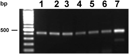 Transcription of Opisthorchis viverrini cysteine protease mRNA revealed by RT-PCR. Developmental stages examined: (lane 1), metacercariae (2), juvenile 1 week (3), juvenile 2 weeks (4), juvenile 3 weeks (5), adult worms (6) and O. viverrini cDNA library (7).