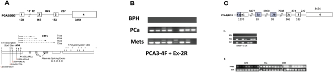 Complexity of PCA3 transcripts. (A) Partial PCA3 gene structure as originally reported by Bussemakers et al. [15] with 4 exons (open boxes ∼ not to scale) with alternate splicing of exon 2 and three alternate transcription termination sites in exon 4. 5′ RACE experiments (Supplementary Fig. S1 ) identified 4 novel PCA3 transcription initiation sites (isoforms 1–4 marked by vertical arrows pointing down with nucleotide sequence below located 1150 bp, 699 bp, 640 bp and 136 bp upstream of the original initiation site (renamed here isoform 5). 3′ RACE identified four novel polyadenylation sites (7 in total*) located in exon 4. The size of exon 1 is expanded from the original 120 bp to 1270 bp. Isoform 4 ( PCA3-4 ) is the most highly expressed of the four novel isoforms. Four overlapping ORFs initiate from a single 'ATG' start site (vertical arrow pointing up) within PCA3-4 and terminate within one of the alternatively spliced exons (2a or 2b or 2c) or within exon 3. (B) RT-PCR amplification of BPH, PCa and PCa metastasis samples using a forward primer from within the novel PCA3-4 transcription start site and a reverse primer from novel exon 2a. (C) Complete structure of the PCA3 gene. Shading identifies the newly identified regions of the PCA3 gene which has 6 exons with alternate splicing of exon 2a (93 bp) and exon 2b (93 bp) and exon 2c (original exon 2, 165 bp). and (D) RT-PCR amplification of PCA3 using the same forward primer and a reverse primer from novel exon 2b and (E) RT-PCR amplification of PCA3 using a forward primer from PCA3-5F (within the original transcription start site) and a reverse primer spanning exons 1 and 3 [15] .
