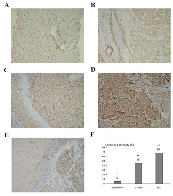 Immunohistochemical staining of Cav-1 in normal, cirrhotic and HCC tissue sections . (A) Absence of Cav-1 expression in hepatocytes of normal donor liver tissue and strong Cav-1 expression in the endothelium of the blood vessels. (B) Cav-1 positivity in the cirrhotic nodule and endothelium of the vessels with same intensity. (C) Membranous Cav-1 positivity in one of the well differentiated HCC cases. (D) Strong cytoplasmic Cav-1 expression in a poorly differentiated HCC. (E) Staining of Cav-1 in an HCC sample with its tumoral and surrounding peritumoral region. (F) The percentage of Cav-1 staining in normal liver, cirrhosis and HCC tissues (* p