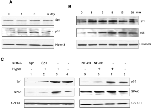 Western blots of transcription factors Sp1 and NF-κB (p65). A. Western blots of Sp1 and NF-κB (p65) demonstrating hyperosmolarity effect on Sp1 and NF-κB protein levels in vivo . Histone3 acts as a control. B. Western blots of Sp1 and NF-κB (p65) demonstrating hyperosmolarity effect on Sp1 and NF-κB protein levels in vitro . Histone3 acts as a control. C. Reduction of NF-κB but not Sp1 expression reduced SPAK protein expression in unstimulated and in hyperosmolarity-stimulated Caco2-BBE cells. Cells were harvested and subjected to western blot analysis using Sp1, NF-κB (p65), and SPAK antibodies as described in materials and methods . GAPDH acts as a loading control.