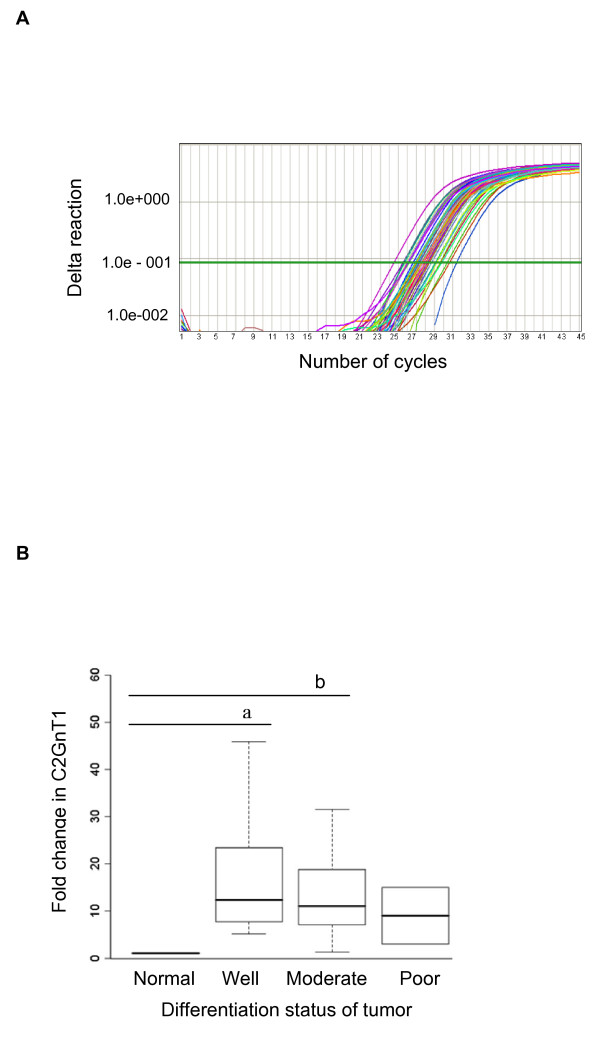 C2GnT1 mRNA levels were upregulated in human colorectal adenocarcinomas compared to normal tissues . (A) Graph of amplification plots obtained by the Applied Biosystems 7500 Real-Time PCR system for C2GnT1 mRNA expression. (B) A box-plot showing the results of semi-quantitative RT-PCR analysis. The distribution of mRNA gene expression is shown as a fold change in C2GnT1 mRNA expression in normal colorectal tissues and in well, moderately, and poorly differentiated colorectal adenocarcinomas. A Kruskal-Wallis non-parametric test was performed for statistical comparison among the groups. a Denotes a significant difference (p = 0.015) between normal and well groups; b Denotes a significant difference (p = 0.025) between normal and moderate groups.