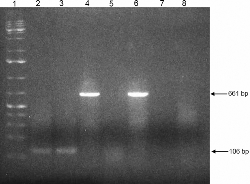 RT-PCR of total RNA of HCECs and human mononuclear cells for COL8A2 and β-actin . Agarose gel shows in lane 1: 1 kb plus ladder, lane 2: COL8A2 with HCECs, lane 3: COL8A2 with HCECs, pretreated with DNase (control to rule out DNA contamination), lane 4: β-actin (housekeeping gene serving as positive control), lane 5: COL8A2 with human mononuclear cells (negative control), lane 6; β-actin with human mononuclear cells (positive control), lane 7: no template (negative control to rule out contamination of reagents), lane 8: PCR with HiFi Taq of HCEC total RNA using COL8A2 primers (negative control to rule out contamination of HCEC total RNA with genomic DNA).