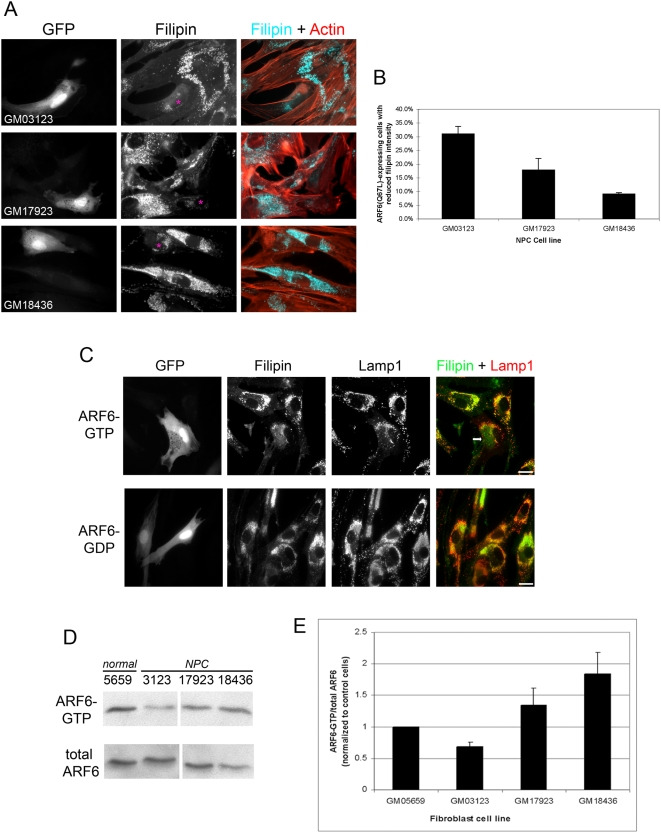 Reduction in cholesterol accumulation induced by ARF6-GTP expression is coupled to endogenous ARF6-GTP levels in NPC mutant fibroblasts. A , NPC mutant fibroblasts (GM03123, GM17923, and GM18436) were transfected with pIRES-GFP bearing ARF6(Q67L). Cells were fixed approximately 24 h post-transfection and stained with filipin (pseudo-colored blue in merged image) and counterstained with rhodamine phalloidin (red in merged image). Transfected cells are marked with asterisks in filipin images. Note decreased filipin staining in GFP-positive cells. B , NPC mutant fibroblasts (GM03123, GM17923 and GM18436) were treated as in A . Transfected cells with filipin intensity that was lower than neighboring non-transfected cells (as depicted in A ) were scored (see Methods ). 80–100 transfected cells of each cell line were counted in each of three independent experiments. The average percentage of transfected cells displaying reduced filipin intensity is graphed. Standard error bars are shown. Statistically significant comparisons: GM03123 vs. GM17923, p = 0.0117 and GM03123 vs. GM18436, p = 0.0114. C , GM03123 cells were transfected with pIRES-GFP bearing ARF6(Q67L) (top row) or ARF6(T27N) (bottom row). Cells were fixed approximately 24 h post-transfection and stained with filipin (pseudo-colored green in merged image) and immunolabeled for Lamp1 (red in merged image). Bars, 20 µm. Arrow points to region where filipin staining no longer overlaps with Lamp1. D , Lysates were prepared from normal (GM05659) and NPC mutant fibroblasts (GM03123, GM17923, GM18436) and subjected to the GST-MT-2 pull-down assay and probed for ARF6. Top row is ARF6 precipitated with GST-MT-2 beads and bottom row is ARF6 from the total cell lysate. E , Immunoblots from three independent experiments were subjected to densitometric analysis and the ARF6-GTP/total ARF6 ratios were calculated and normalized to control levels (GM05659). Standard error bars are shown. Statistically significant comparisons: GM