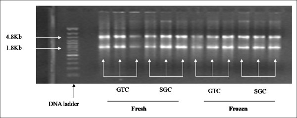 Total RNA quality assessment on the basis of 18S and 28S rRNA . On left side, lane # 1 shows DNA ladder (0.5 kb – 7.0 kb). The <t>ethidium</t> bromide-staining pattern of intact total RNA shows clearly defined 18S and 28S ribosomal RNA bands [lane # 3–5 (GTC; fresh); lane # 6–8 (SGC; fresh sample); lane # 9–11 (GTC; frozen); and lane # 12–14 (SGC; frozen).