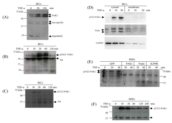 Activation and stabilization of endogenous PAK1 in response to TNF-α by keratinocytes and dermal fibroblast . (A) Keratinocytes (IKCs) were treated by TNF-α for the indicated periods and PAK1 protein was measured by Western blot analysis. Intact PAK1 and the putative degradation and non-specific bands were indicated. (B) Threonine-423 phosphorylation of PAK1 by the IKCs in response to TNF-α was measured by Western blot analysis. (C) Threonine-212 phosphorylation of PAK1 by the IKCs in response to TNF-α was measured by WB analysis. (D) Distribution of phosphorylated PAK1 in cytosolic and membrane compartments was measured by Western blot analysis. GAPDH was used as an indicator for cytosolic proteins. (E) Threonine-423 phosphorylation of PAK1 by HDFs was measured by Western blot analysis. (F) Thronine-212 phosphorylation by HDFs was measured by WB analysis.