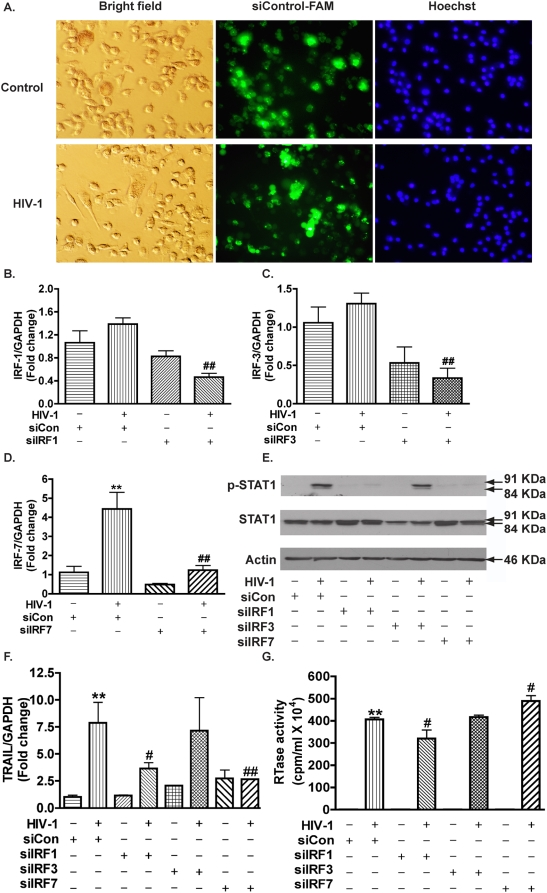 siRNA knockdown of IRF-1 and IRF-7 reduces STAT1 phosphorylation and TRAIL expression in HIV-1-infected macrophages. Two days after HIV-1 infection, MDM were transfected with siRNA for IRF-1, -3, or -7. A. Forty-eight hours later, successful transfections were confirmed by Silencer FAM-labeled Negative Control #1 siRNA transfection indicator (green). Hoechst 33258 (nucleus marker, blue) was used to visualize the total cell number. B–D. Total RNA was collected 48 hours post-transfection and mRNA levels of IRF-1(B), -3(C), or -7(D) were determined by real-time RT-PCR. E. Ninety-six hours after transfection, p-STAT1 and total STAT1 were detected by Western blotting. β-actin was used as a loading control. F. TRAIL expression levels were determined by real-time RT-PCR. Results were normalized with GAPDH and shown as the fold change over non-specific siRNA control. G. Supernatants were tested for HIV-1 RTase activity. ** indicates p